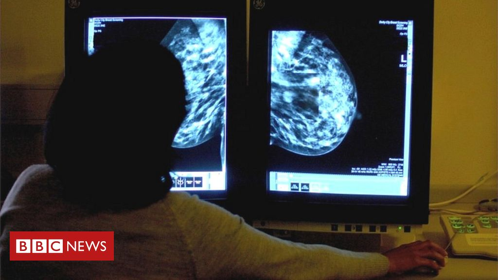 Breast cancer: The epidemic may have left 4,000 cases undiagnosed in Brazil, the study says